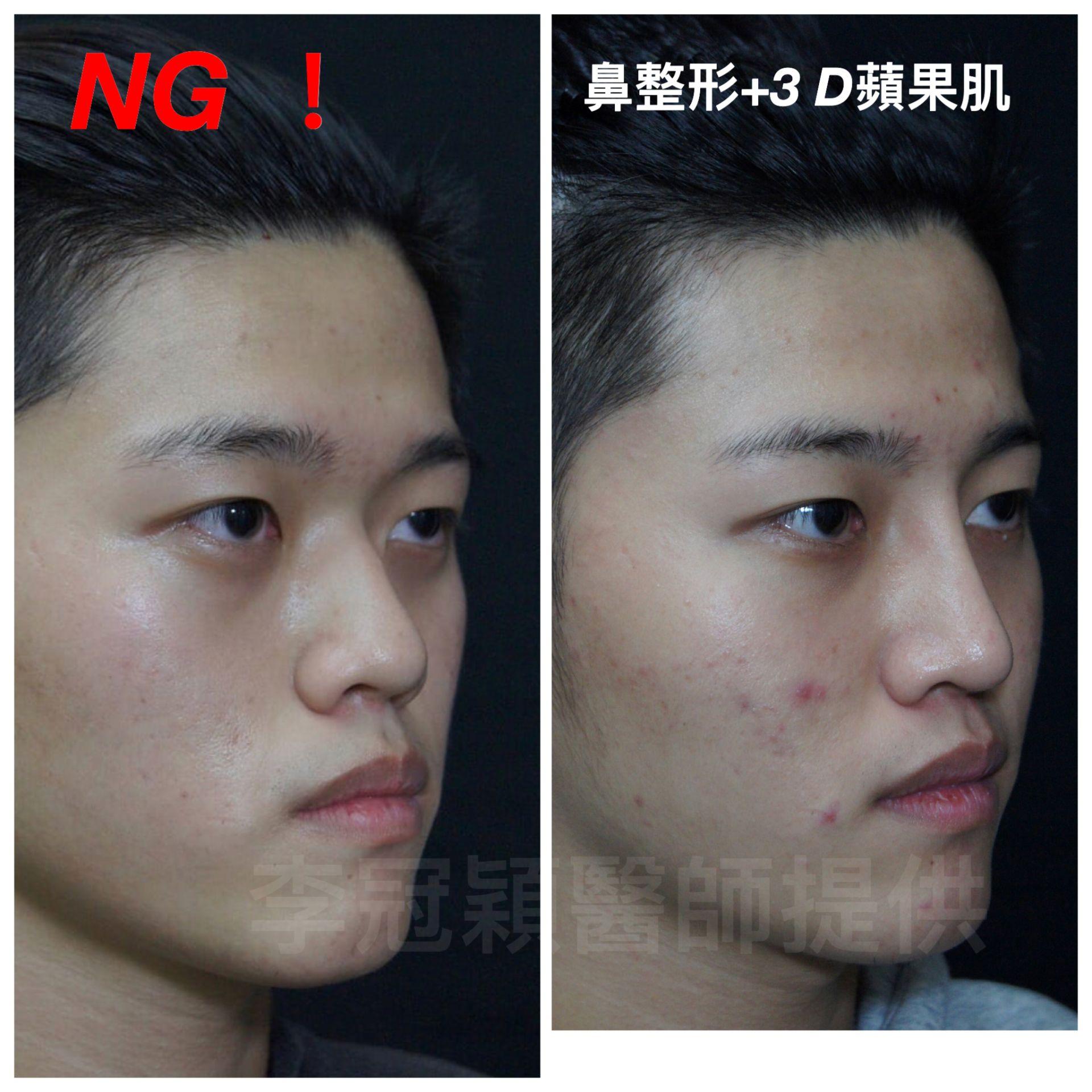 台中李冠穎醫師男性隆鼻案例
