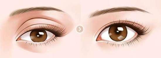 眼窩補脂肪手術-蔡穎瀚