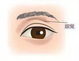 眼窩補脂?
