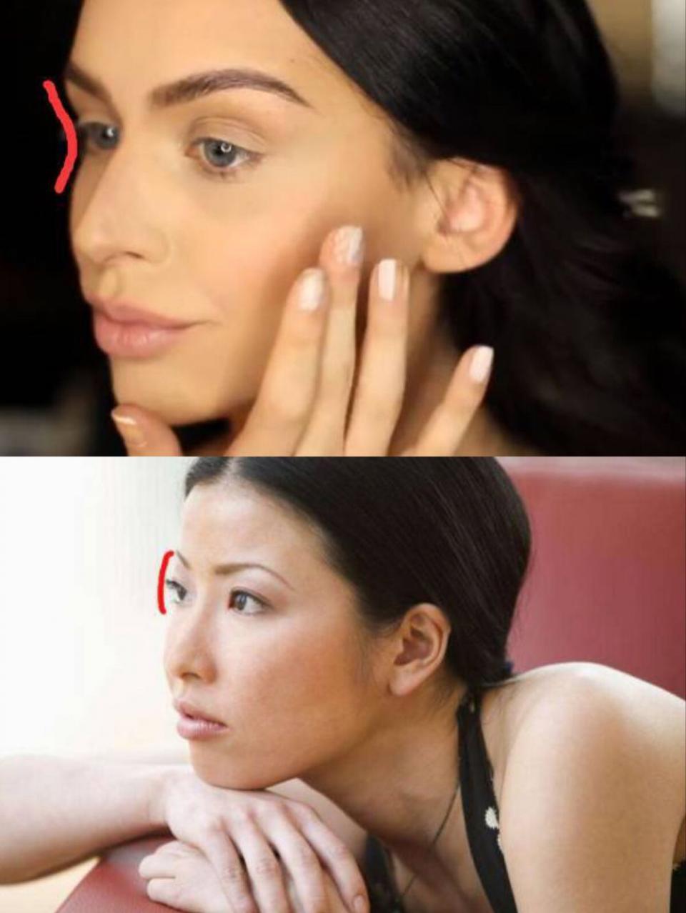 混血輪廓眼窩補脂-台中推薦蔡穎瀚醫師