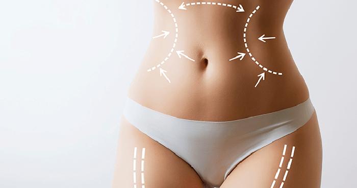 避免抽脂手術風險-台中抽脂手術推薦