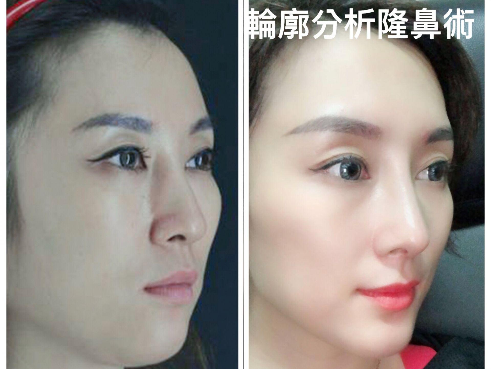 3D列印下巴手術-李冠穎整形外科醫師