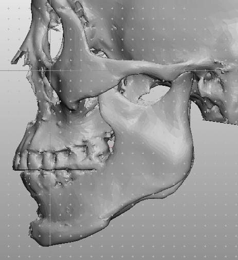 3D-15