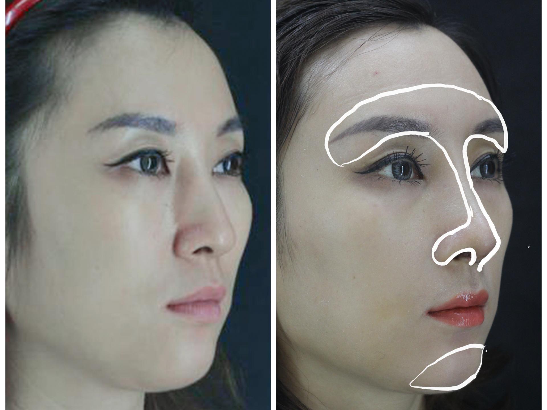 3D列印下巴手術-台中采妍整形外科診所