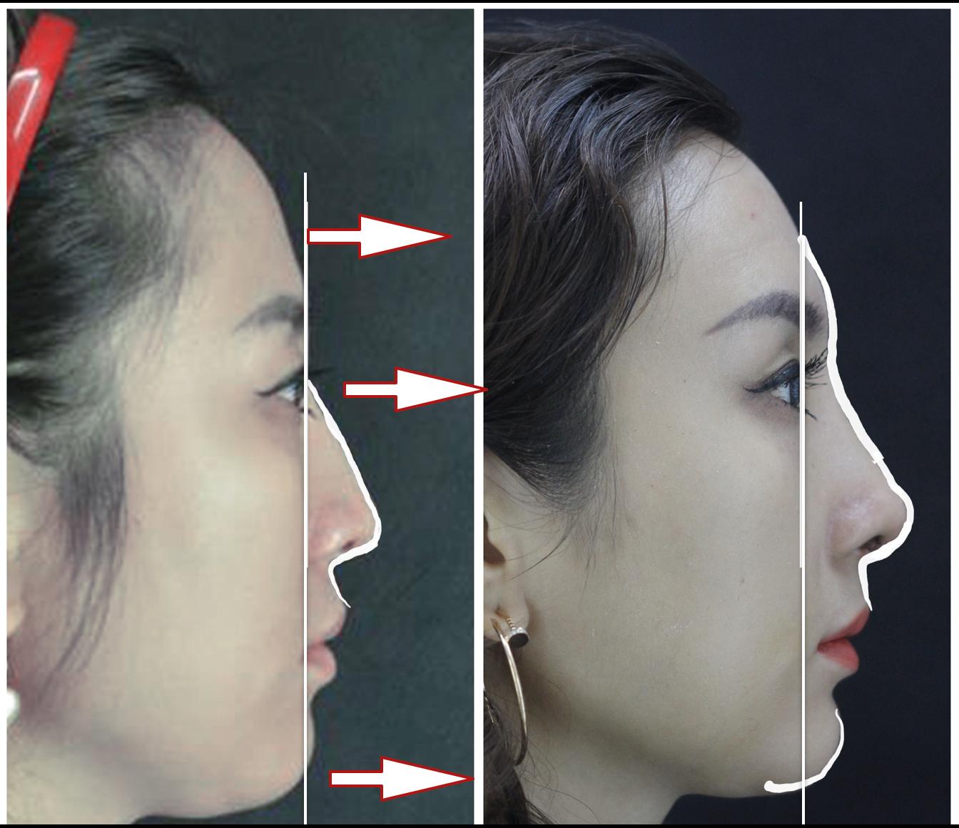 3D列印下巴手術-吳肇權整形外科醫師