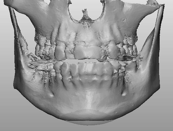 3D列印墊下巴手術-李冠穎