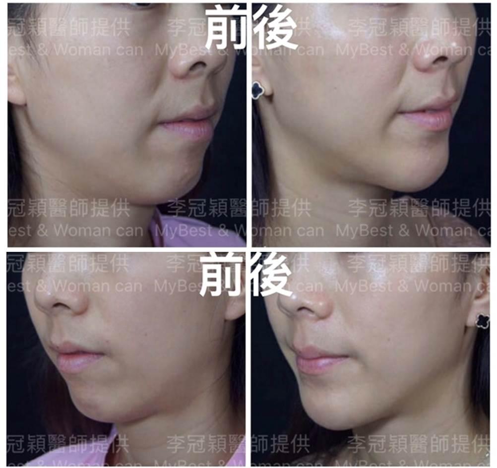 3D下巴手術案例-李冠穎