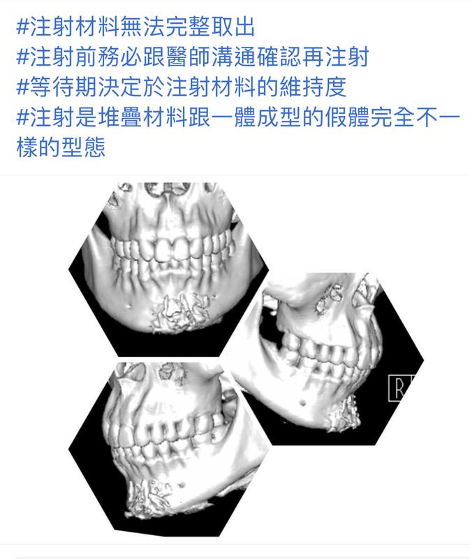 3D列印下巴手術