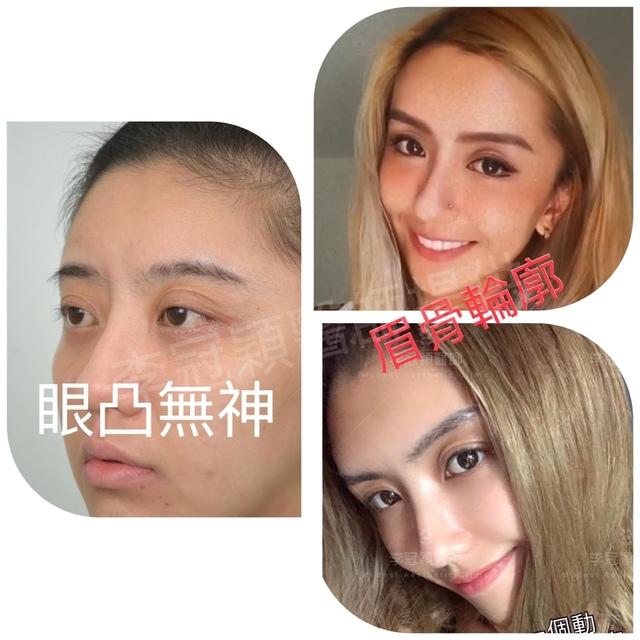 李冠穎眉骨手術案例