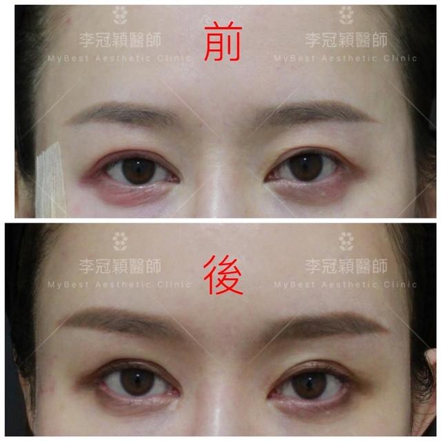 台中李冠穎醫師-眼眶手術案例