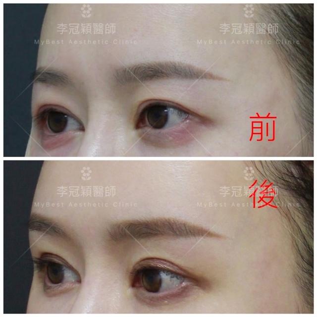 台中李冠穎醫師-眉骨手術案例
