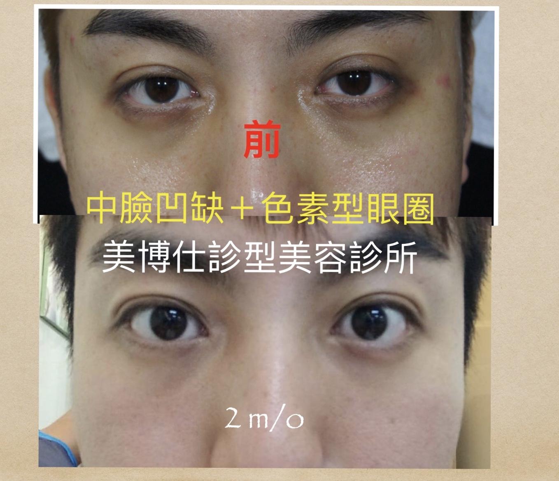 黑眼圈手術治療-采妍整形外科診所