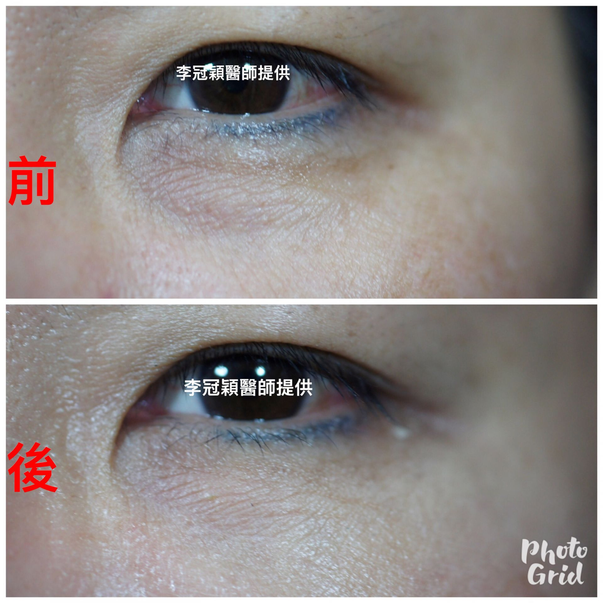 黑眼圈治療手術-李冠穎醫師