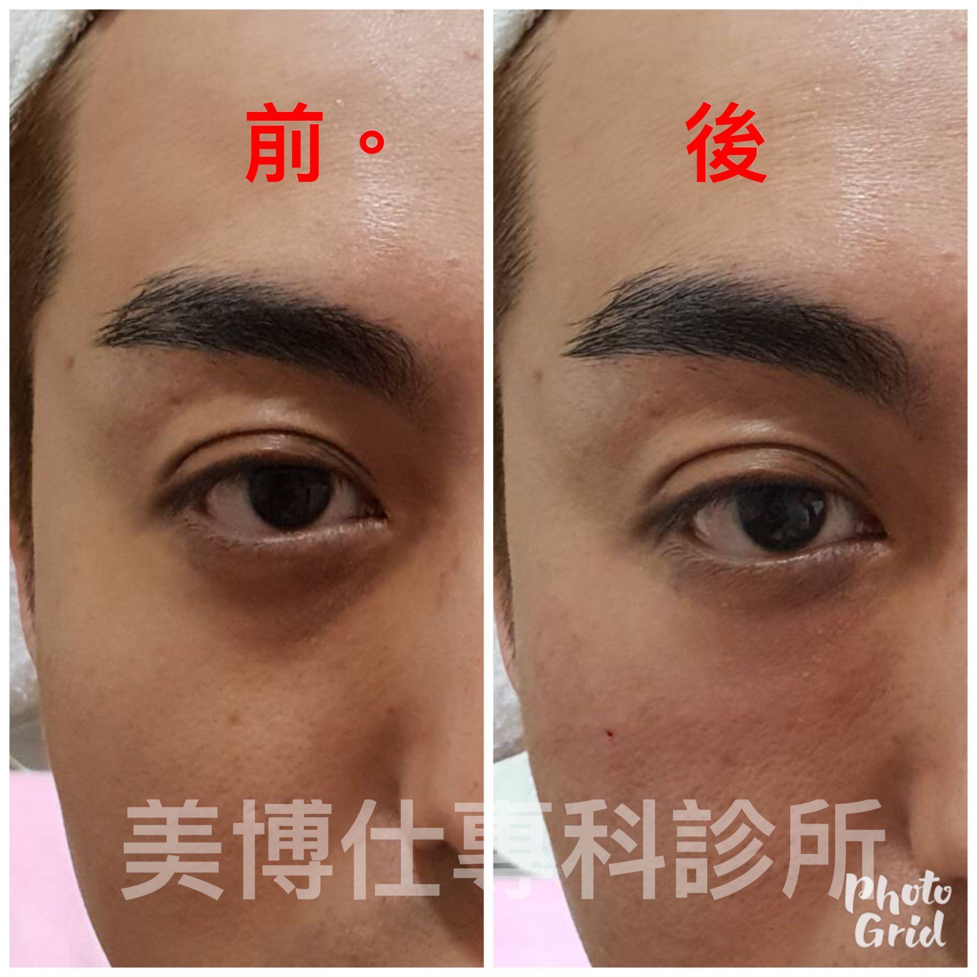 黑眼圈手術治療-李冠穎