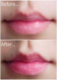 Lip-cosmetic-surgery-02