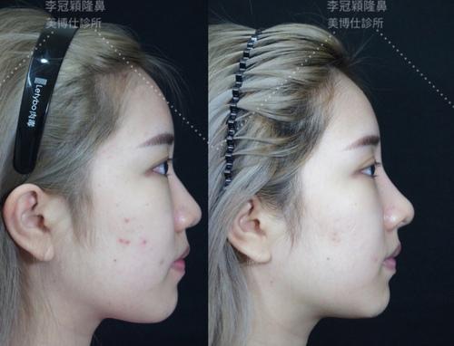 Nose_sculpture-case4