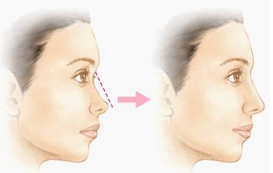 隆鼻種類-李冠穎醫師