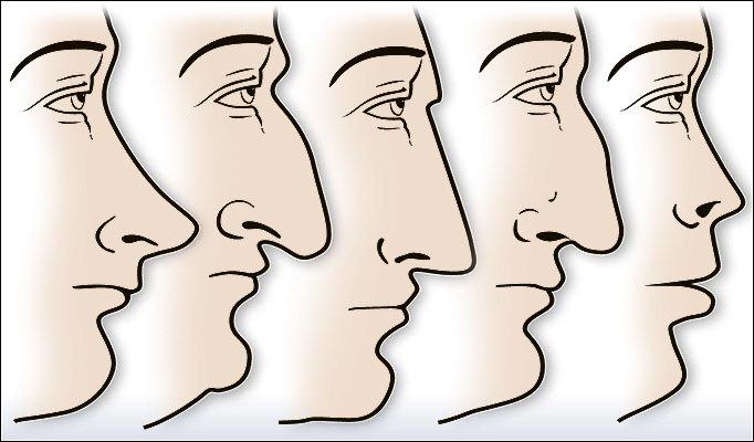 隆鼻手術類型-李冠穎醫師