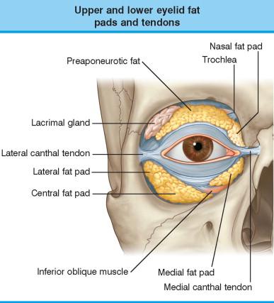 眼袋內開手術