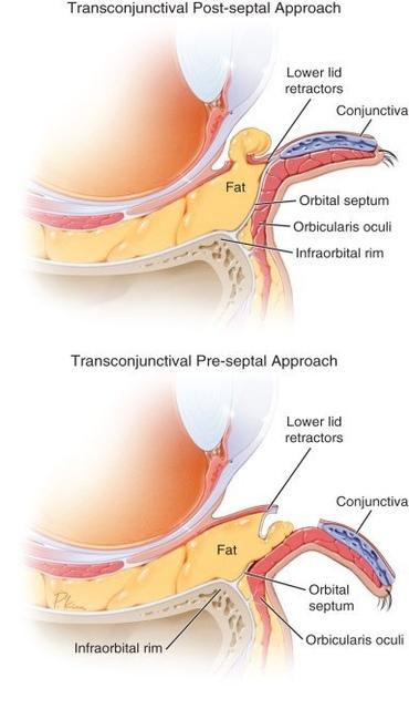 李冠穎眼袋內開手術案例