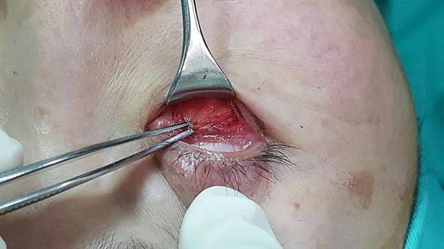 眼袋手術內開