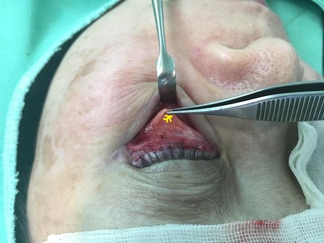 眼袋手術過程-李冠穎醫師