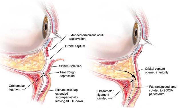 眼袋手術示意圖