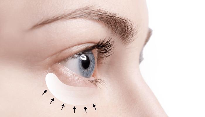 台中無痕眼袋-台中眼袋手術推薦