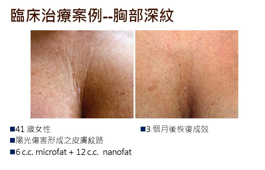 nona-fat-case01
