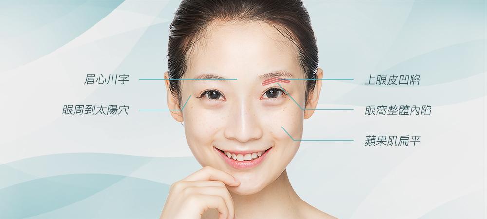 眼窩補脂手術適合的對象-台中推薦眼窩補脂